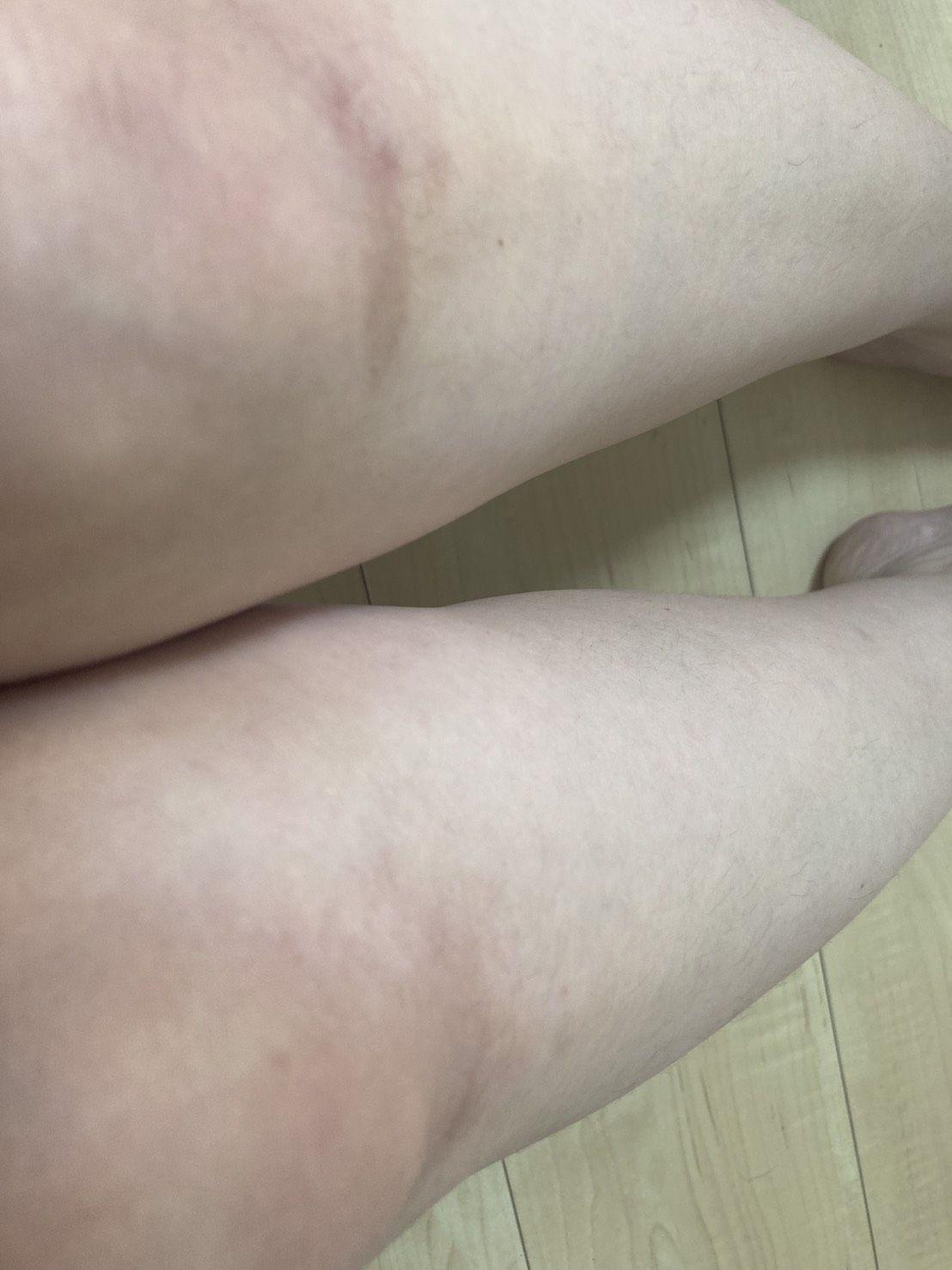 普通の女の子のスネ毛抜き-スマホ自撮り◎高橋みずき(29歳)保育士 サンプル画像02