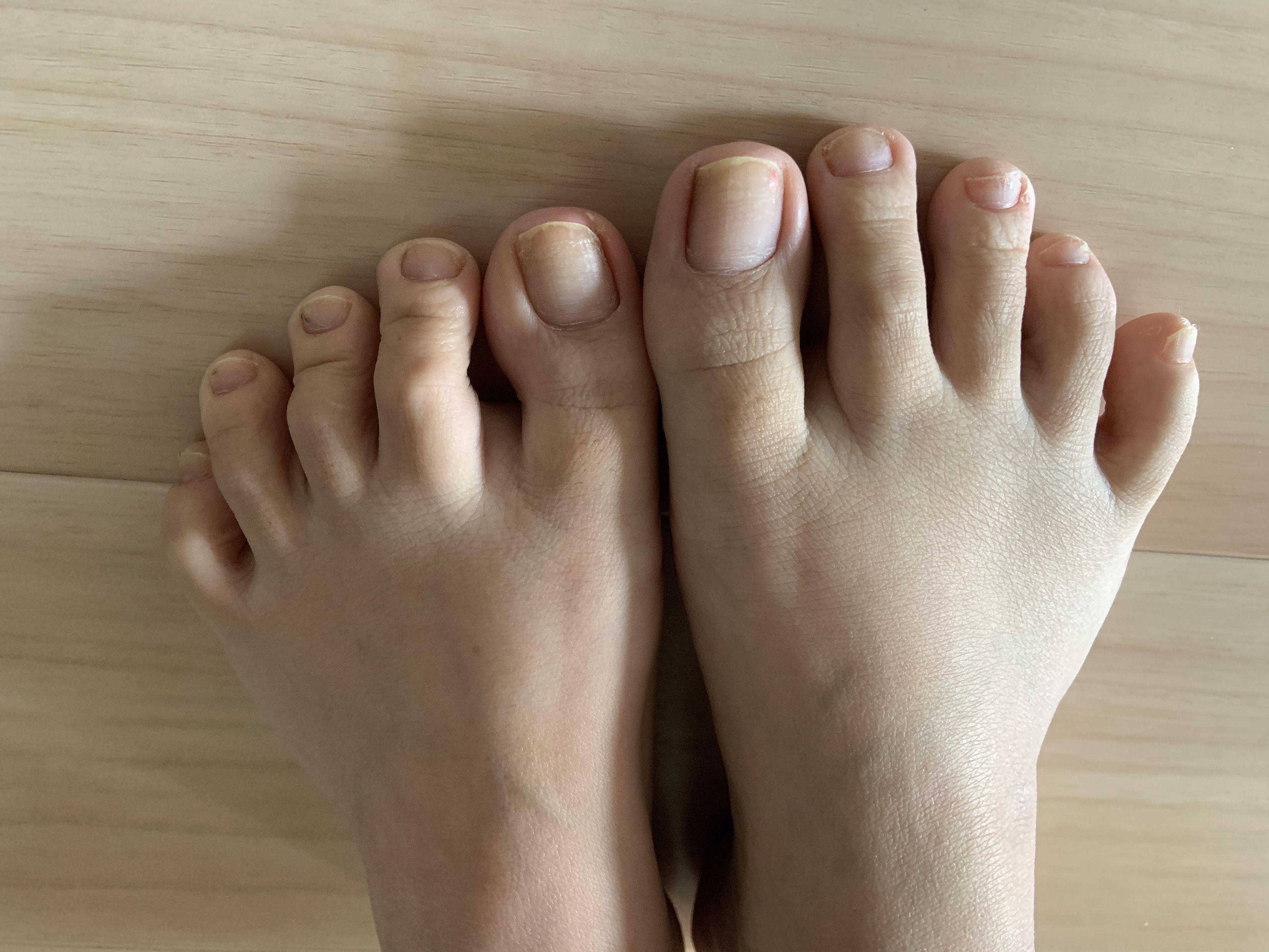 普通の女の子の足の指毛抜き-スマホ自撮り◎あんな(26歳)OL サンプル画像02