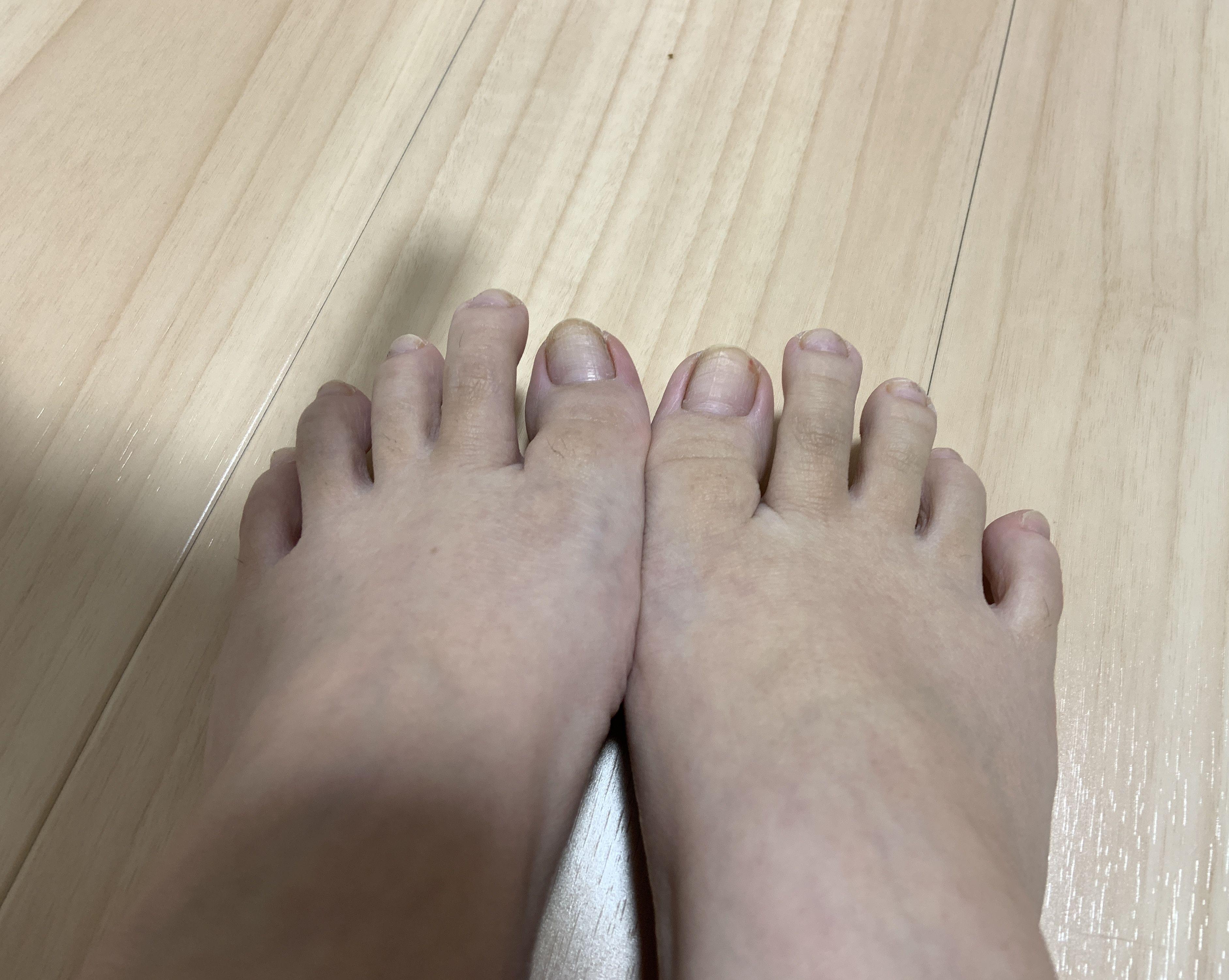 普通の女の子の足の指毛抜き-スマホ自撮り◎あんな(26歳)OL サンプル画像03