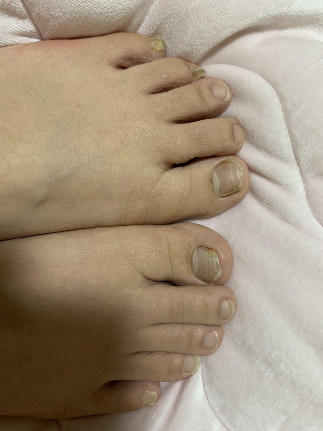 普通の女の子の足の爪切り-スマホ自撮り◎内田彩子(28歳)ヤクルトレディ サンプル画像05
